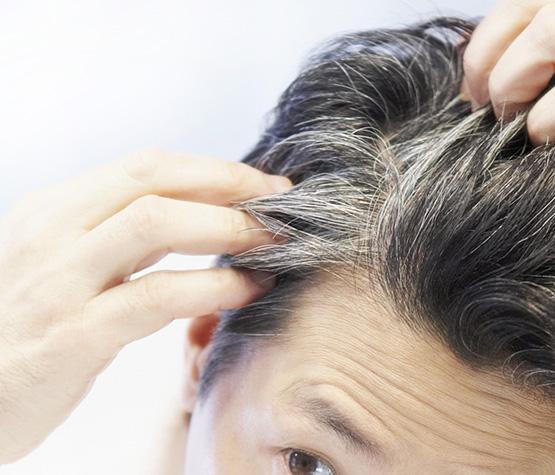 premature-hair-graying